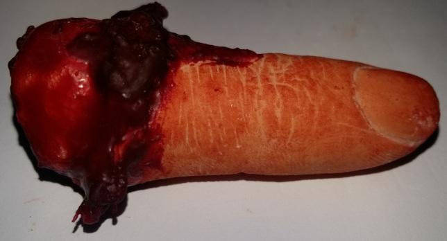 dedo amputado1